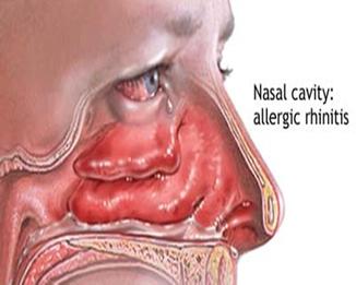 Infecciones en las vías respiratiorias