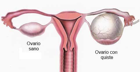 Ovario izquierdo inflamado mundo en línea