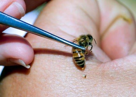 Tipos de usos y milagrosos resultados de la Terapia con abejas